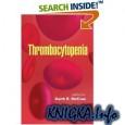 hrombocytopenia